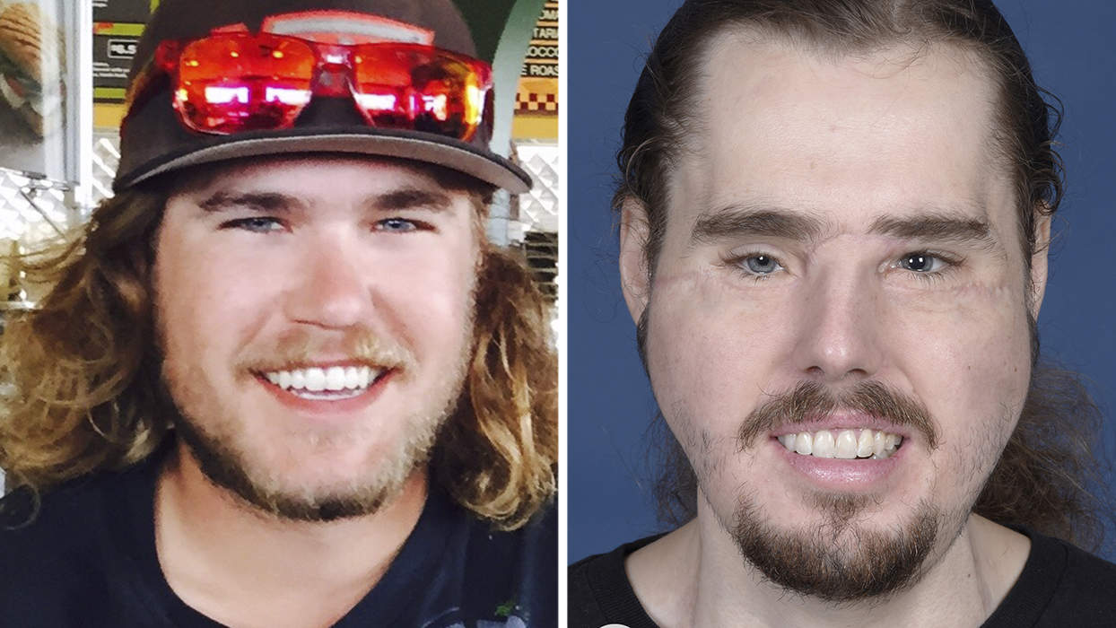 A Face Transplant Is Giving This 26 Year Old A Second